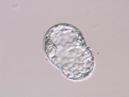 Day 5 6 embryos blastocysts